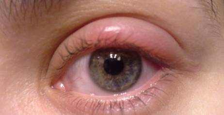 Swollen Eyelids Symptoms, Causes and Treatment