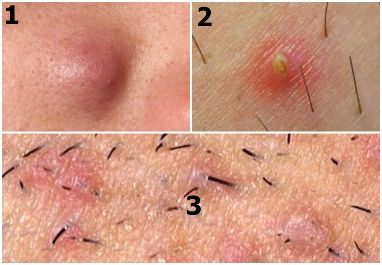 Underarm ingrown hair - different presentations: (1) Deep cyst or boil - (2) Pus filled pimple - (3) Folliculitis affecting large area